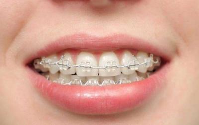健康周刊丨矫正牙齿的知识