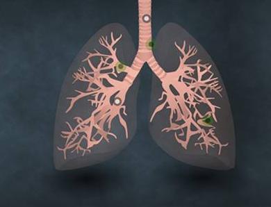 近七成肺癌初诊已是晚期,中国癌症基金会:重治轻防仍严重