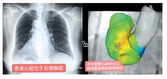 """罕见!市人民医院完成一例""""镜像右位心""""室速消融手术"""