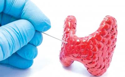 早癌筛查系列科普丨重视甲状腺结节 科学诊疗防癌变